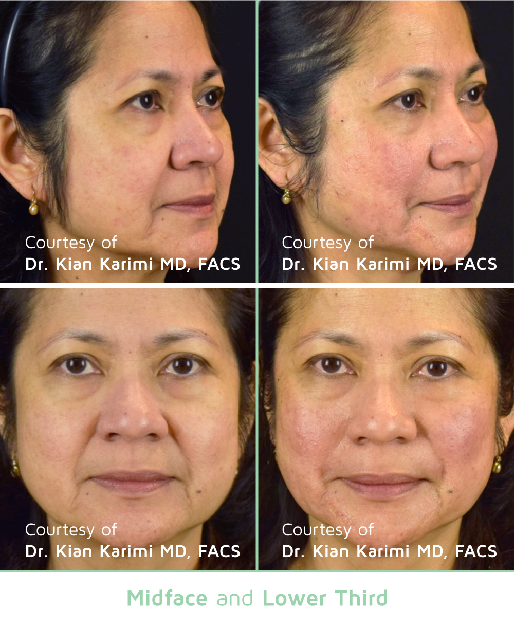 NovaThreads Midface & Lower third- Courtesy of Dr. Kian Karimi